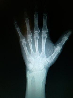 x-ray hand1.jpg